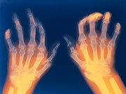 ayurvedic treatment for rheumatoid arthritis