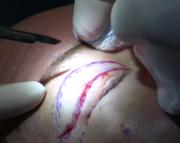 Eyelid Surgery Services in Delhi NCR | Esthetiqe.com : Blepharoplasty