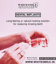 White Smile: Dental clinic in Gurgaon & Delhi | Child dentist