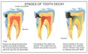 Finding Root Canal Treatment in Gurgaon