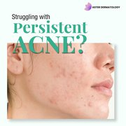 Acne Scars Treatment in Gurgaon